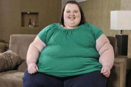 Obezite Ameliyatı Sonrası Bu 10 Öneriye Dikkat!