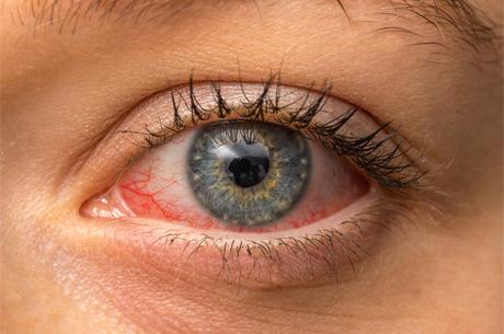Mevsim Geçişlerinde Gözler Nasıl Etkileniyor?